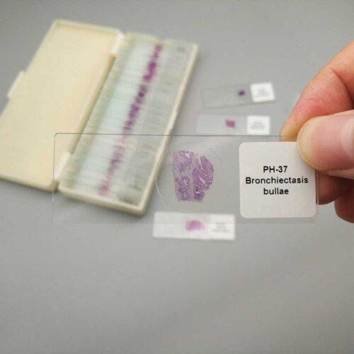 Bronchiectasis-bullae pathology slides