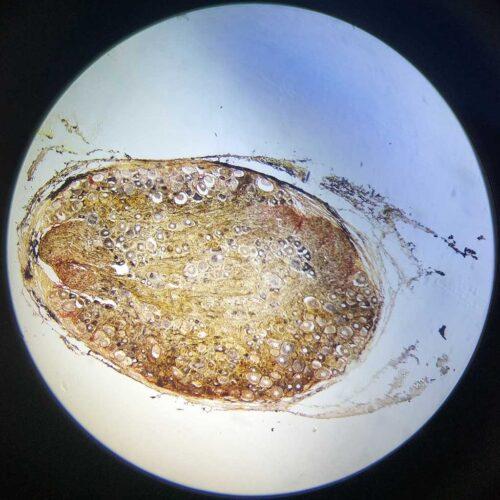 Golgi-Complex