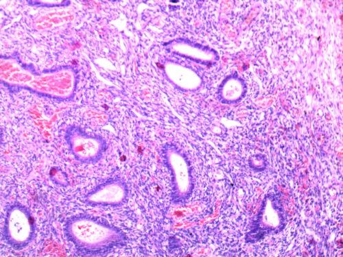 Cervical polyp
