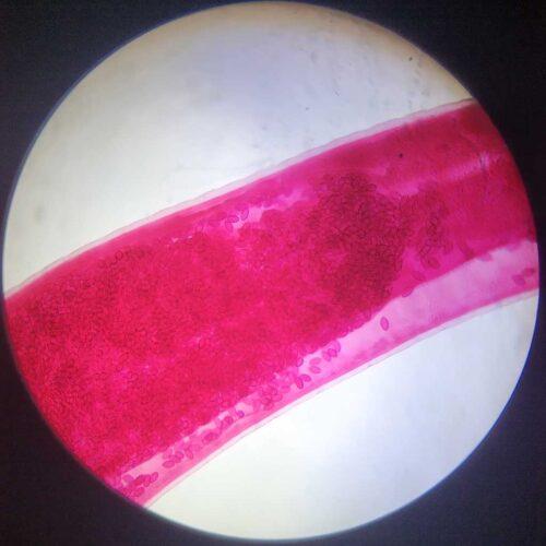 female Trichuris-trichiura adult