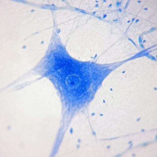 Motor nerve cells