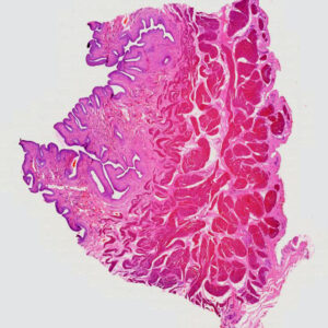 Human bladder section