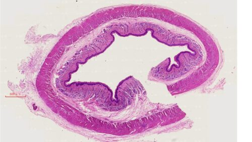 Esophagus Composite, cs. of upper, middle and lower 1/3 portions, mammal, H.E. stain 3