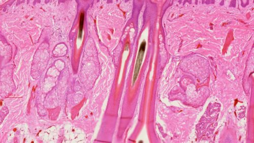 human scalp L.S., H.E. stained, showing hair follicles, sebaceous and sweat glands