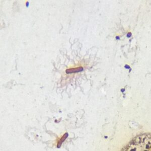 Salmonella typhi with flagella